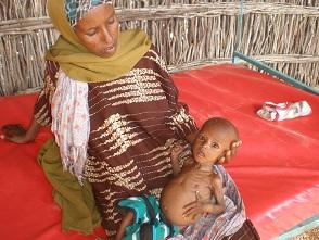 Carruur nafaqo-darro ka dhalatay abaarta ugu geeriyootay Balli-mataan, Somaliland
